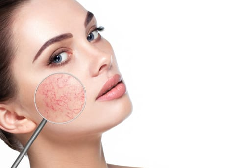 Rosacea Treatment Strategies