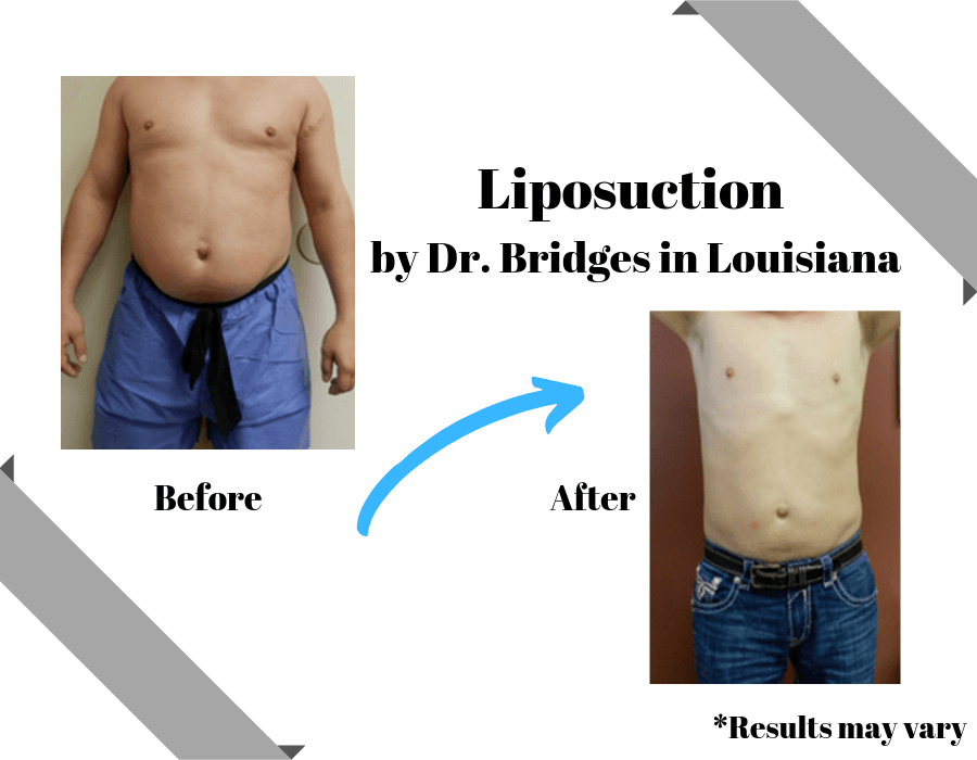Man before and after liposuction with Dr. Bridges in Louisiana.
