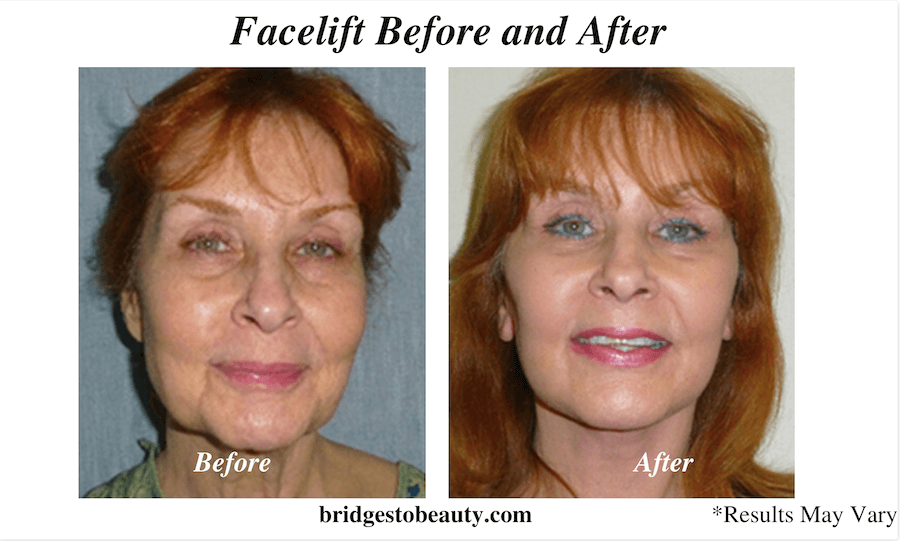 A woman before and after her facelift surgery in Shreveport, LA.