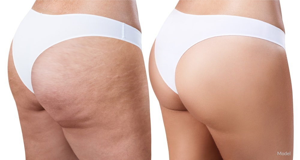 Women before and after a cellulite treatment on her buttocks.