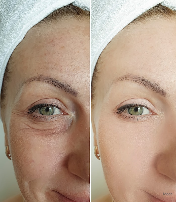 Side-by-side image of a woman with and without bags beneath her eyes.